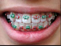braces - retainers